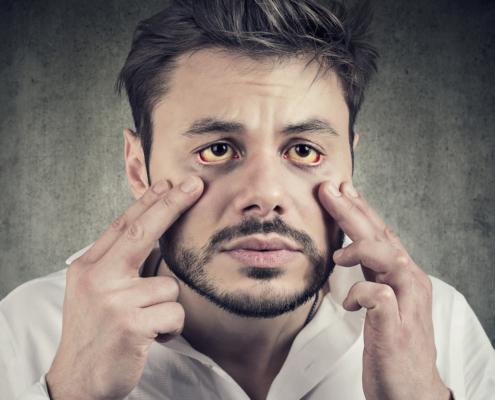 ittero e patologie epatiche