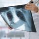 infezione polmonare