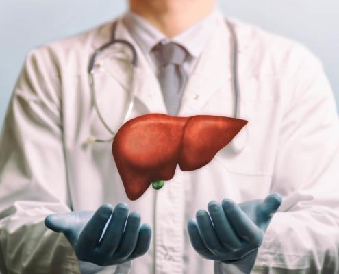 steatosi epatico o fegato grasso